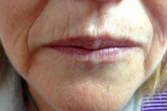 Permanent Make Up - Vorher 04